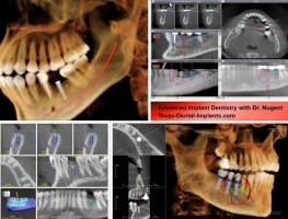 bảng gia niềng răng nha khoa