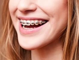 Bảng giá nieng răng và bọc răng sứ nha khoa á châu 2021