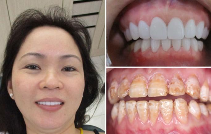 Chụp răng sứ lên răng thưa có được lâu không?