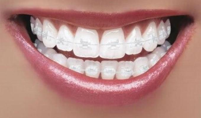 Trám kẽ hở răng có bền không, duy trì được bao lâu?